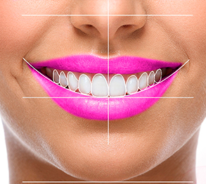 estética dental en Berga
