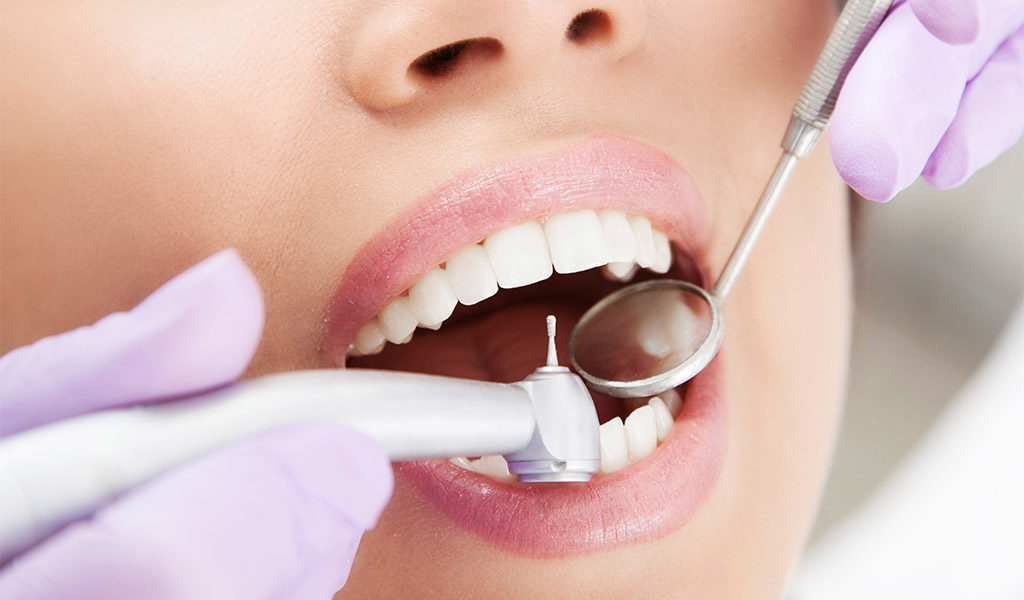 higiene dental en Berga