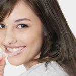 ortodoncia invisible en Berga