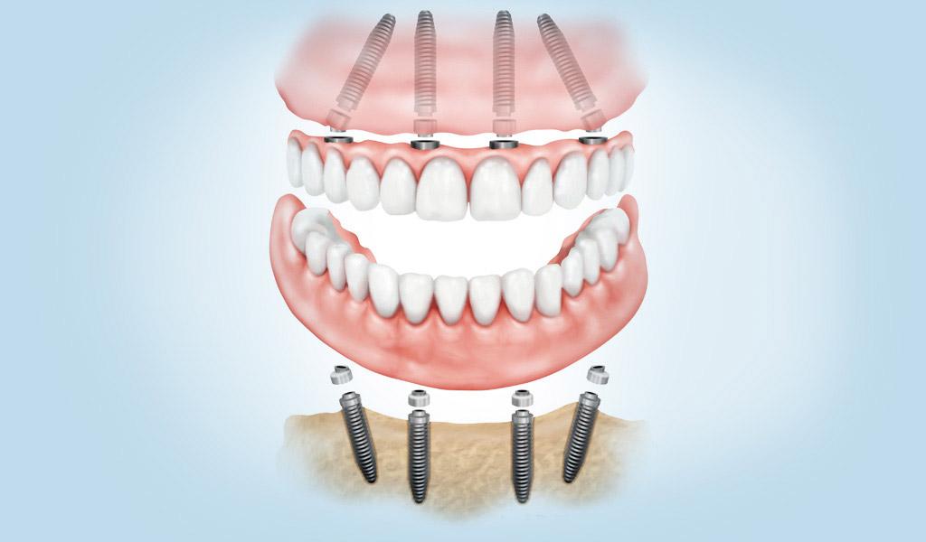 dentadura fijada con implantes dentales en Berga