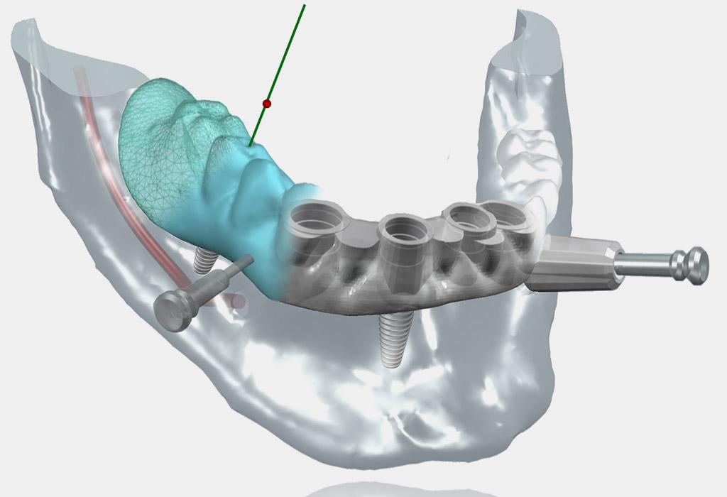 cirugía guiada implantes dentales en Berga